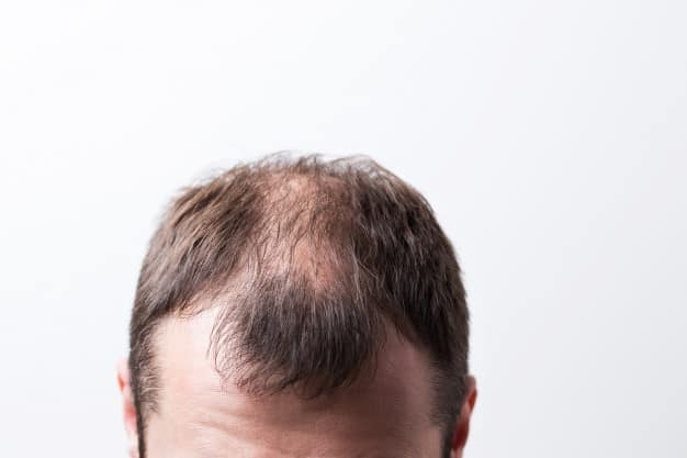 Caída del pelo Alopecia