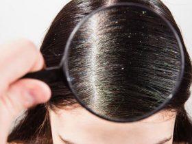 descamación pelo