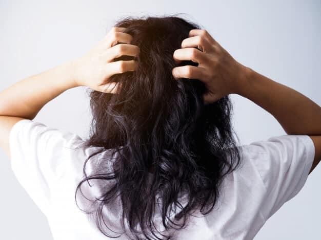 Escamas en el pelo