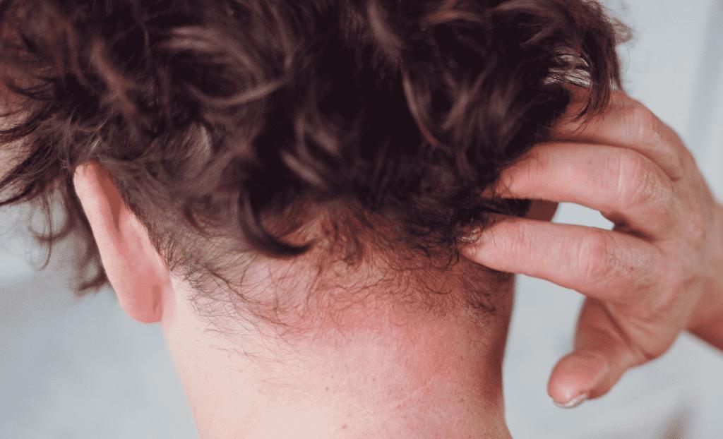 dermatitis en el cuero cabelludo